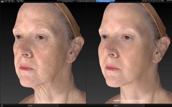 Mirror 3D imaging on screen