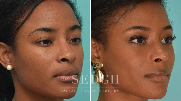 African American Rhinoplasty Before and After | Sedgh