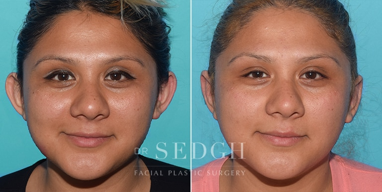 Ear Pinning Surgery Before and After | Sedgh