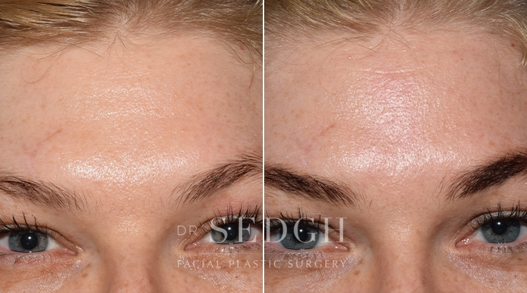 Wrinkle Relaxers Before and After   Sedgh