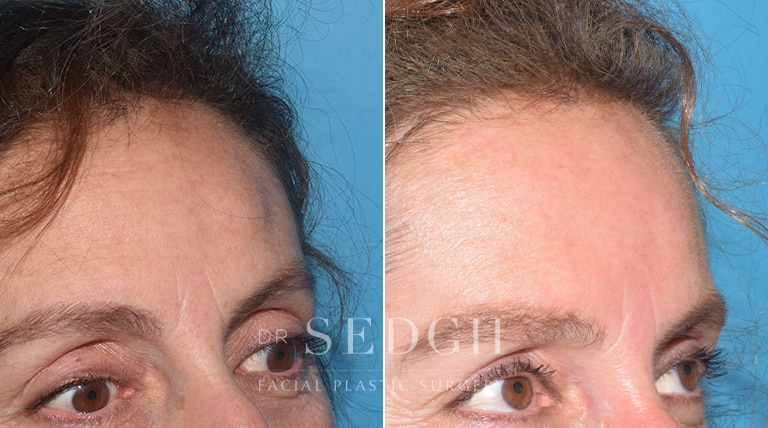 Endoscopic Osteoma Removal Before and After   Sedgh
