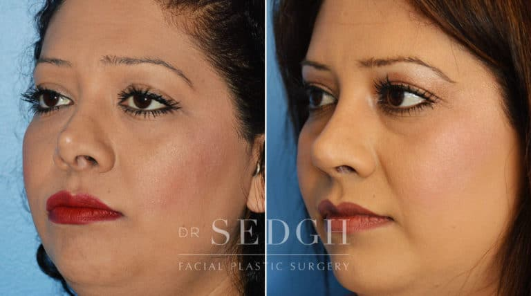 Nasal Fracture Before and After | Sedgh