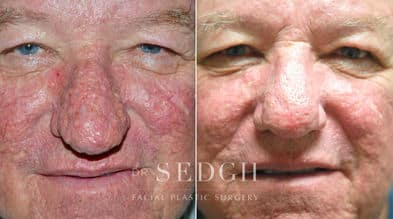 Laser Skin Treatments Before and After   Sedgh