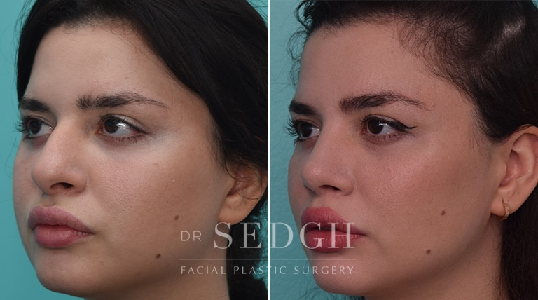 Female Rhinoplasty Before and After   Sedgh