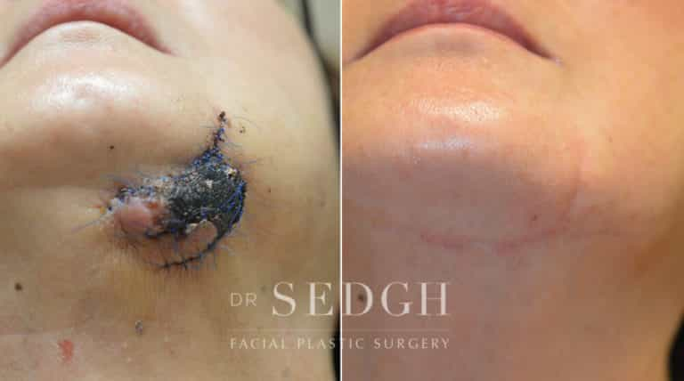Scar Revision Before and After   Sedgh