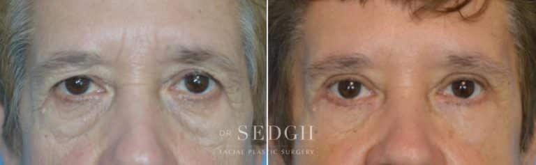 Lower Blepharoplasty Before and After | Sedgh