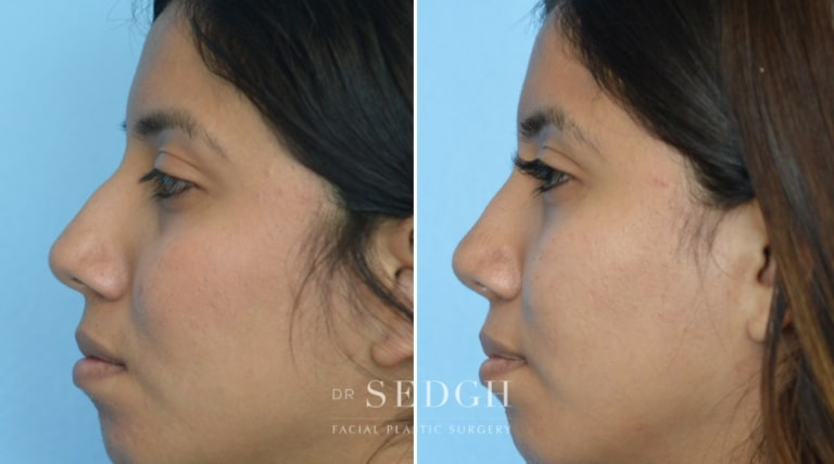 Crooked Nose Surgery Before and After   Sedgh