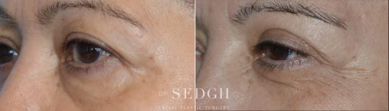 Upper Blepharoplasty Before and After | Sedgh