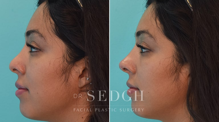 Facial Fillers Before and After | Sedgh