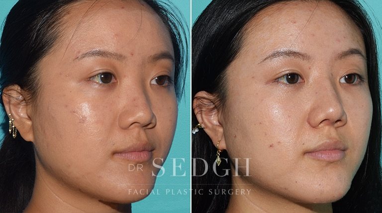 Asian Rhinoplasty Before and After   Sedgh