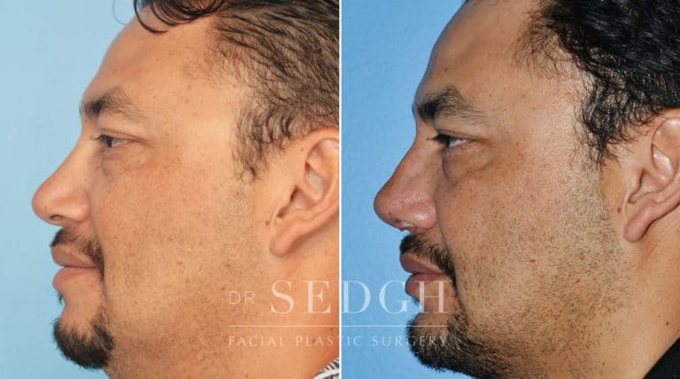 Revision Rhinoplasty Before and After | Sedgh