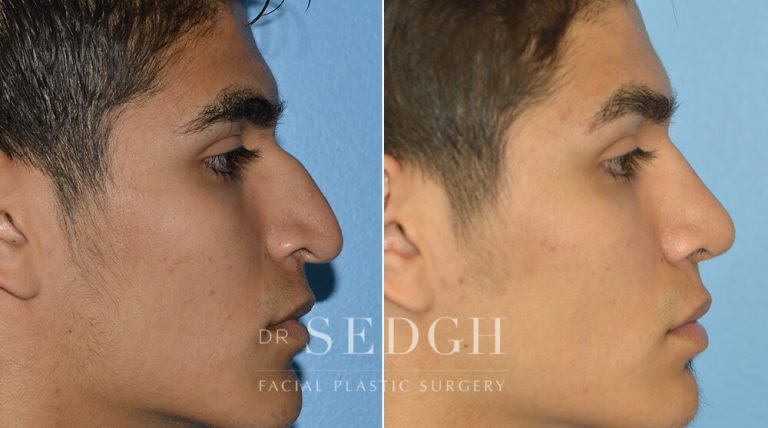 Latino Rhinoplasty Before and After   Sedgh