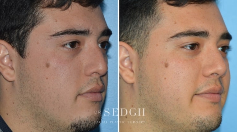 Nasal Fracture Before and After   Sedgh