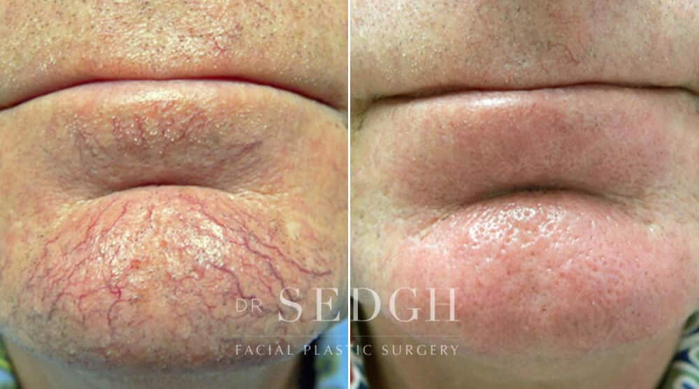 Client before and after hyperpigmentation treatment