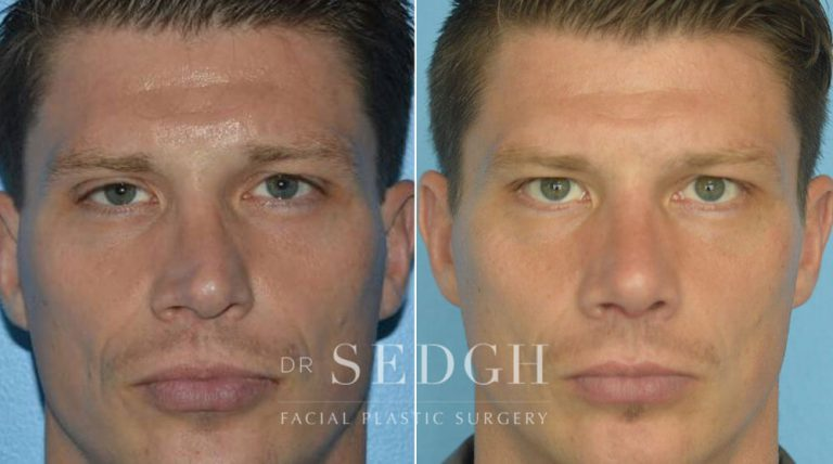 Crooked Nose Surgery