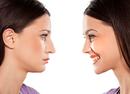 before and after Rhinoplasty surgery
