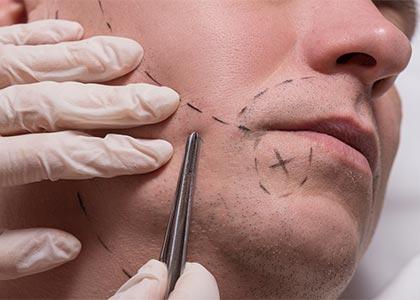 Man beauty procedure beard hair implant