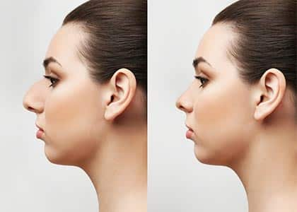 Young woman before and after rhinoplasty on light background