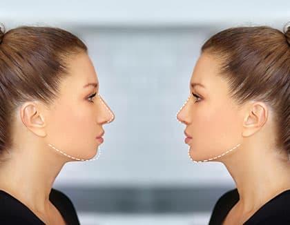 nose and chin correction, rhinoplasty, genioplasty and Chin augmentation